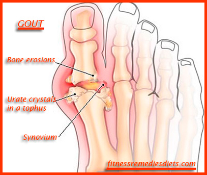 gout pictures