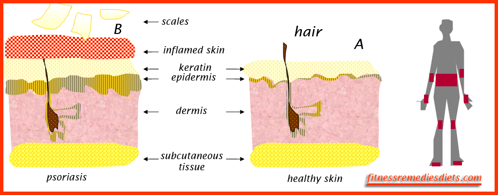 psoriasis natural treatment