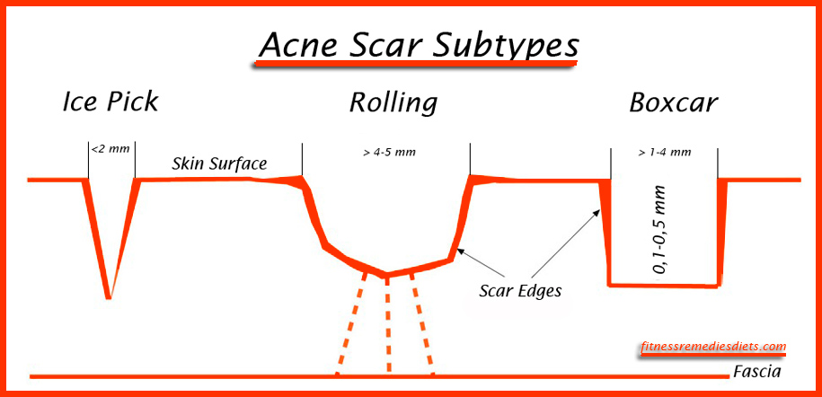 acne scar subtypes