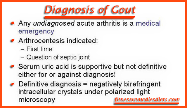 diagnosis of gout