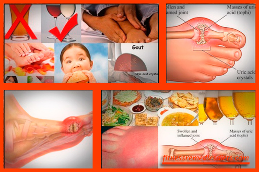 natural home remedies for gout