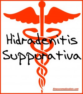 hidradenitis suppurativa treatment