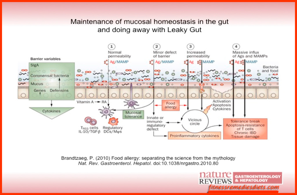 leaky gut syndrome treatment