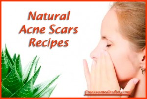 natural-acne-scar-treatments