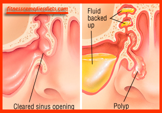 polyps in nose