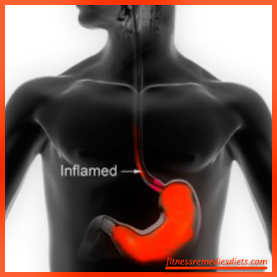 how to cure acid reflux
