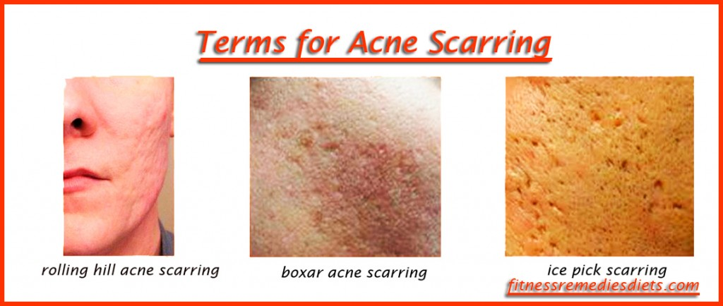 terms for acne scars