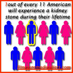 how common are kidney stones 2