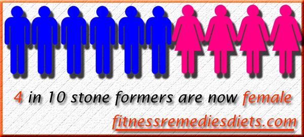kidney stones by gender