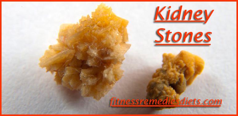 kidney stones photos