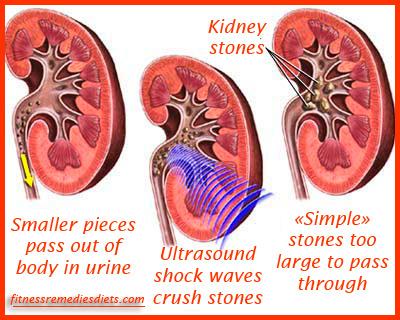 kidney stones pictures