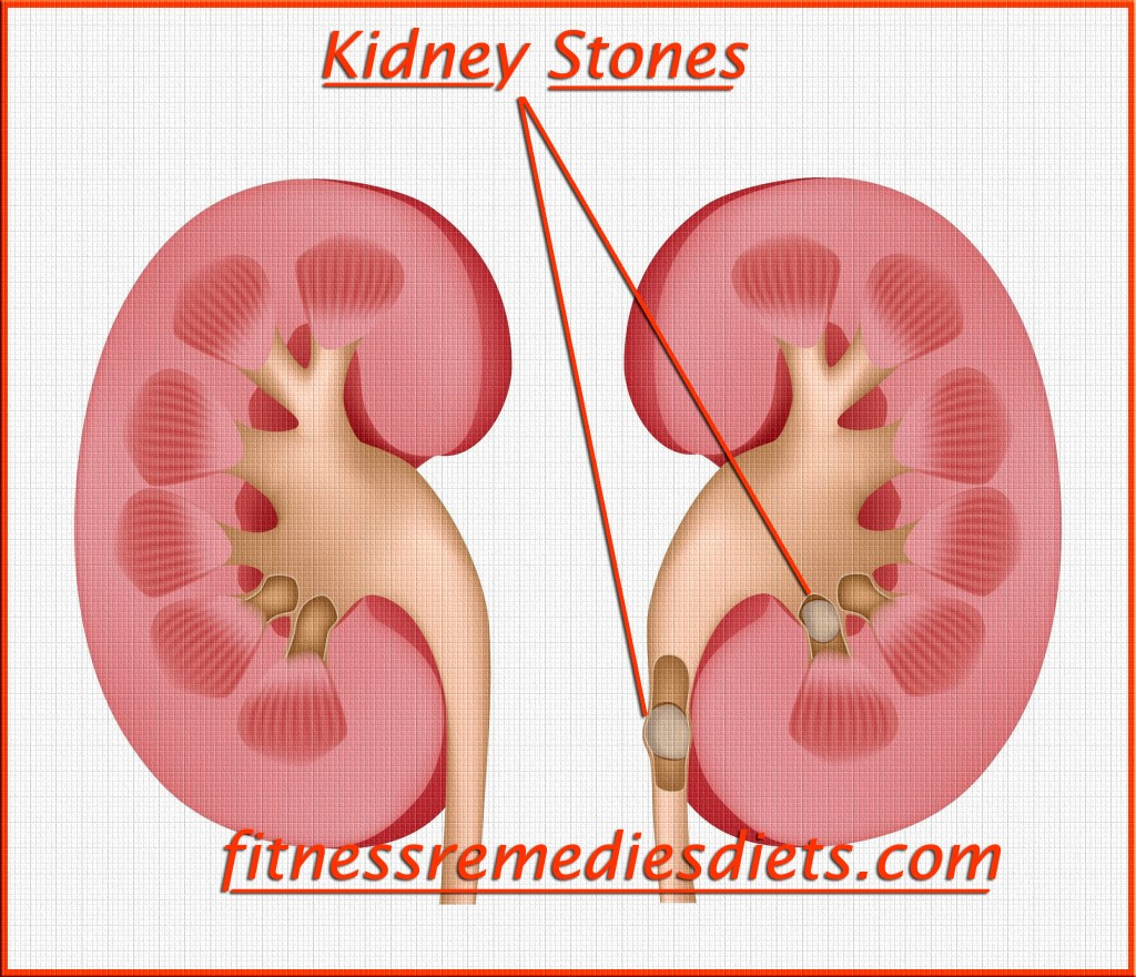 kidney stones picture