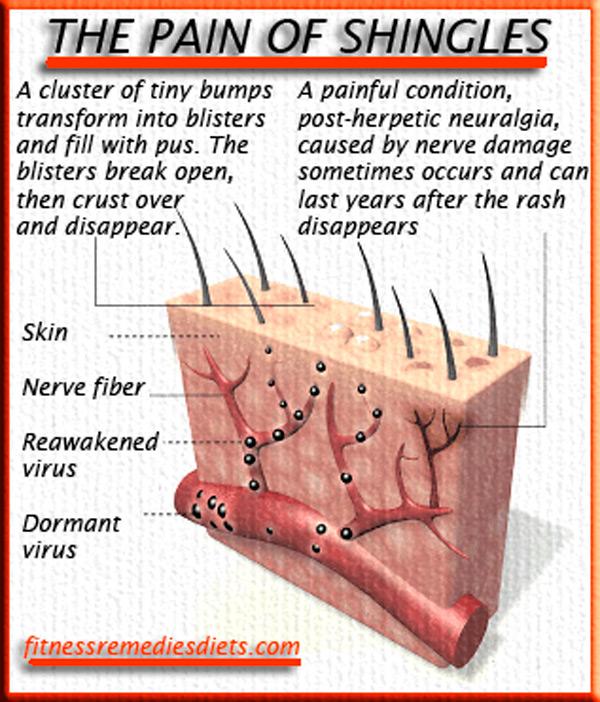 the pain of shingles