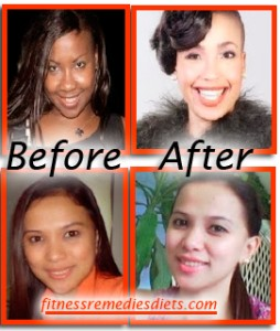 Home Skin Whitening Before After
